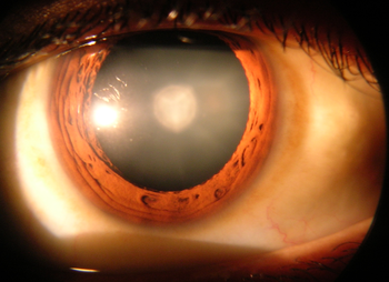 800px-Cataract_in_human_eye.png